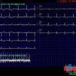 Obr.1 ( EKG 1) – Fibrilace síní patrná ve všech svodech.