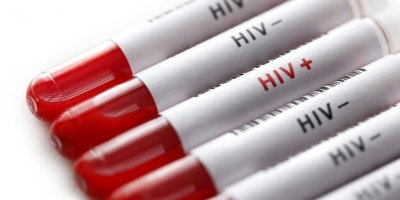 alliance in fight against HIV/AIDS