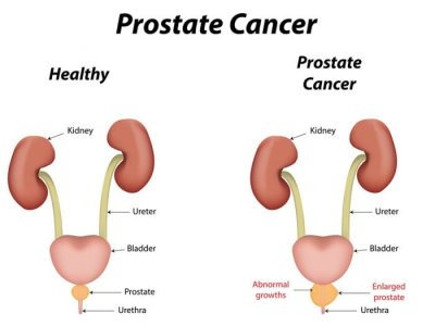 ABCs of Prostate cancer: Causes and Symptoms