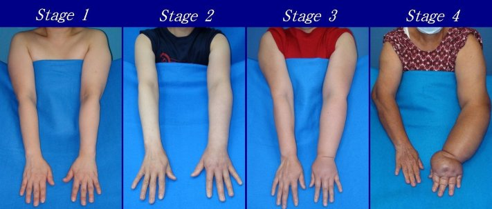 lymphedema stages on arms