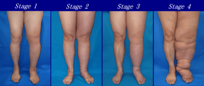 lymphedema stages on legs