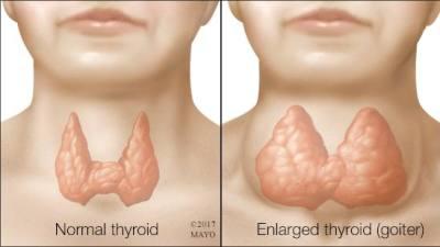 enlargement of thyroid