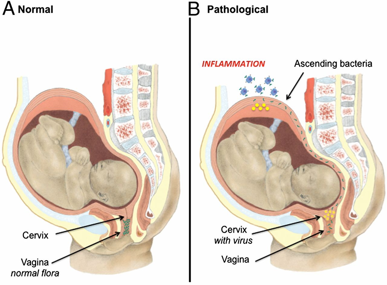 hight resolution of viral infection of the pregnant cervix predisposes to ascending bacterial infection the journal of immunology