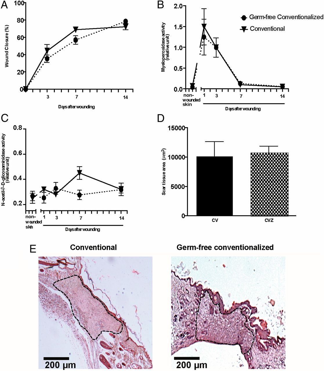 hight resolution of gf colonized mice restore wound healing to conventional mouse level