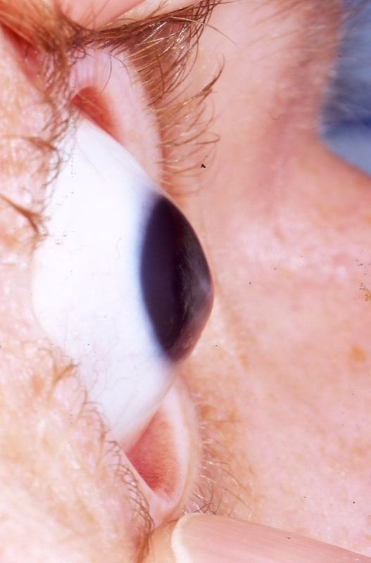 Keratoconus_eye