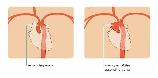 ascending aorta, normal and with aortic aneurysm