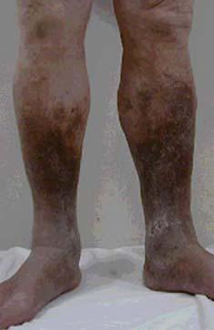 うっ滯性皮膚炎 : 【閲覧注意】左足壊死ニキの病気って ...