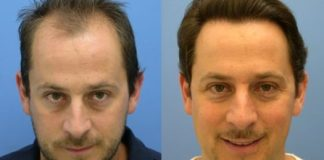Hair Transplant In Delhi, Get The Best Offers At Effective Cost, Best Results