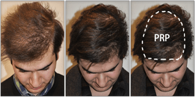 PRP Therapy in Delhi, Hair regrowth treatment, Permanent solution