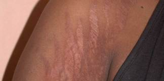 Stretch Marks Treatment in Dehradun, Best clinic, Cost, Benefits