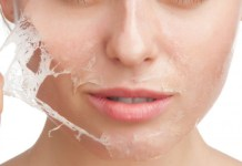 Chemical Peel Treatment, Amazing Benefits, and Procedure
