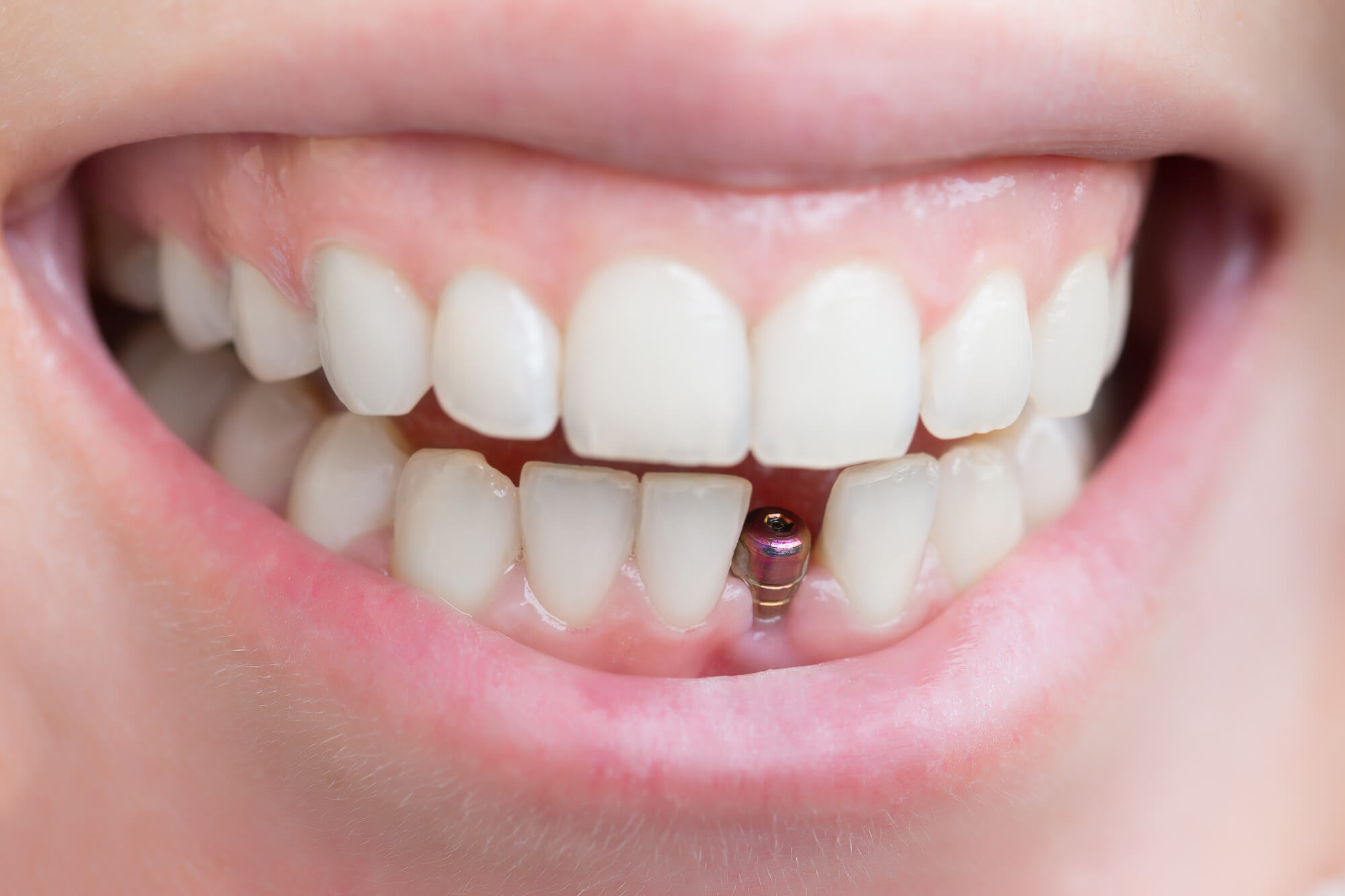 Everything You Need to Know About Dental Implants - Jiva ...