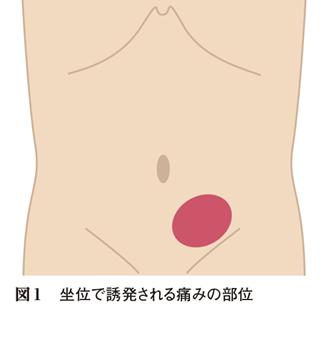 Japan-Image: 左脇腹 痛み 場所