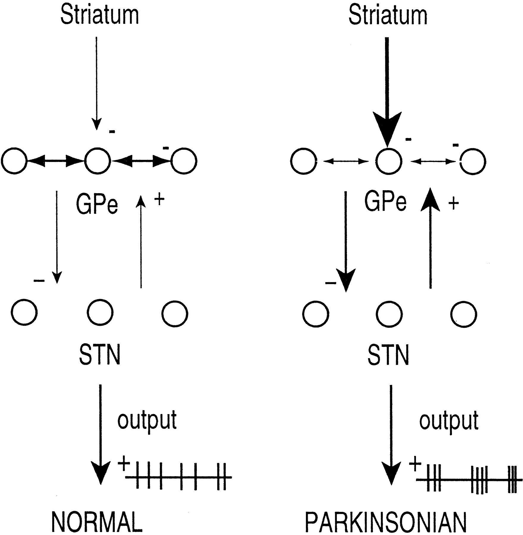 Activity Patterns In A Model For The Subthalamopallidal