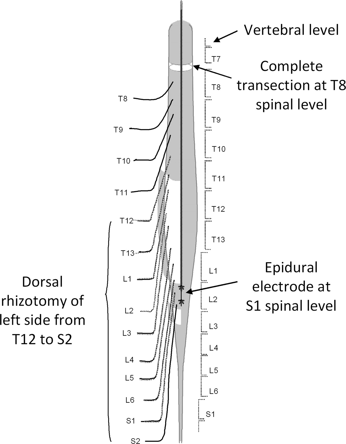 Facilitation Of Stepping With Epidural Stimulation In