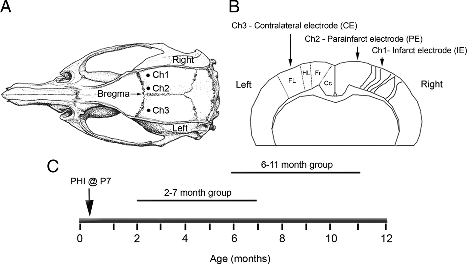 Continuous Electroencephalographic Monitoring with Radio