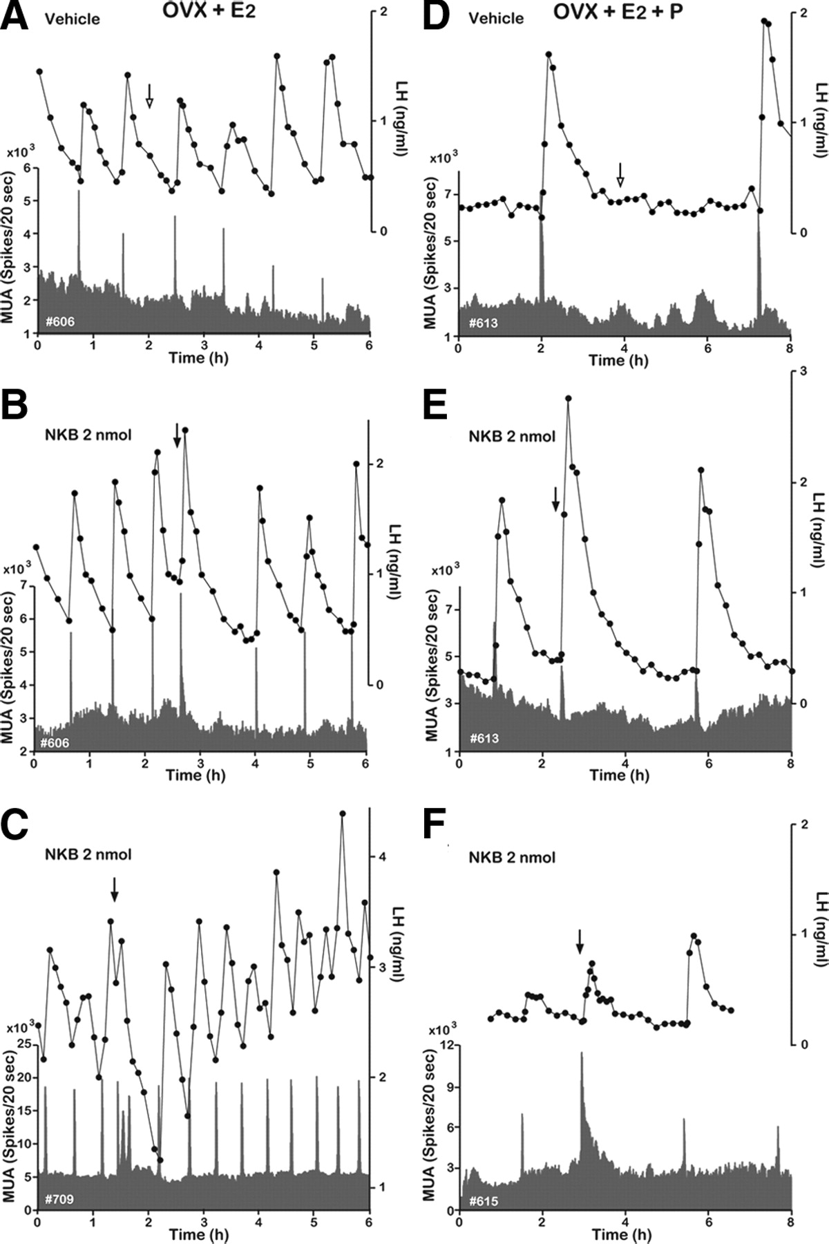 Neurokinin B and Dynorphin A in Kisspeptin Neurons of the