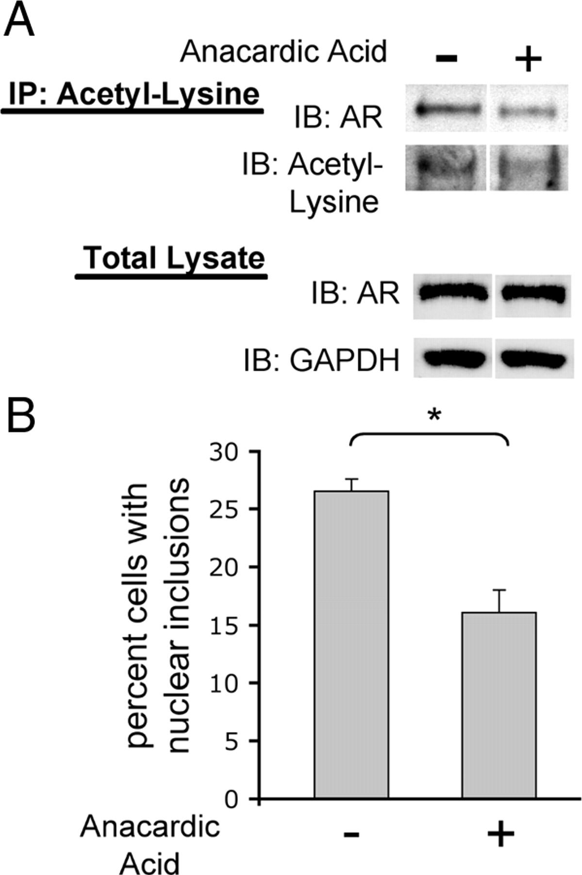 SIRT1 Modulates Aggregation and Toxicity through