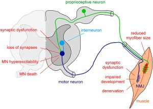 Disease Mechanisms and Therapeutic Approaches in Spinal