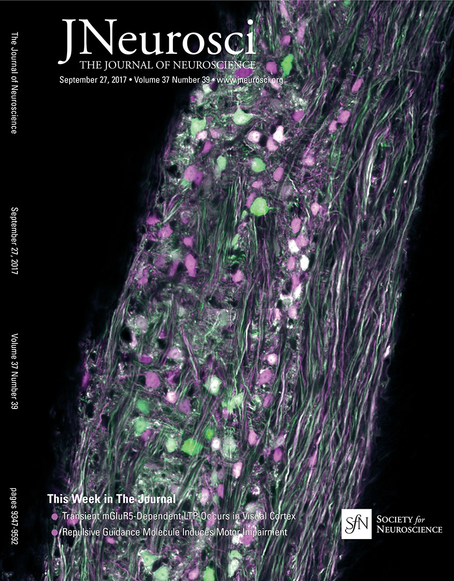 hight resolution of hypothalamic tuberomammillary nucleus neurons electrophysiological diversity and essential role in arousal stability journal of neuroscience