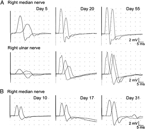 Serial nerve conduction studies provide insight into the