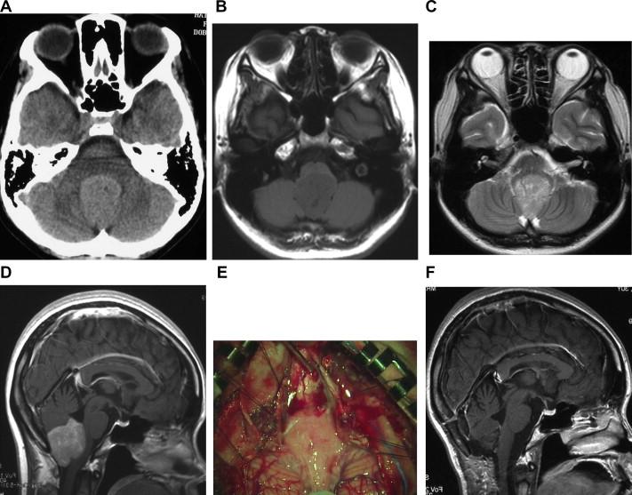 Primary medulla oblongata germinoma – an unusual posterior ...