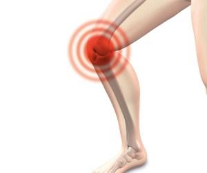 osteoarthritis arthrocalman pain
