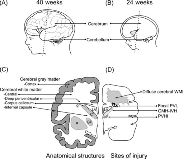 Diffuse White Matter Injury and Neurologic Outcomes of