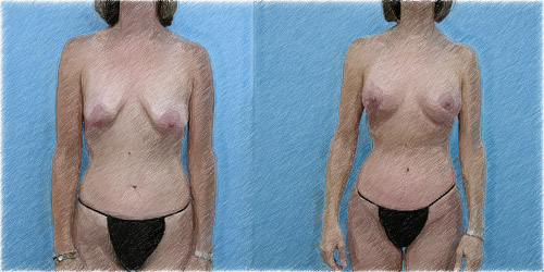 Correction of Ptosis with Breast Lift   Dr. John Q. Cook