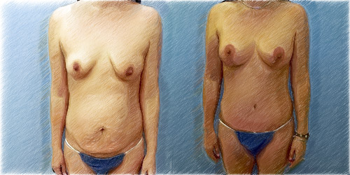 Vertical structural lift and augmentation | Dr. John Q. Cook | Chicago and North Shore
