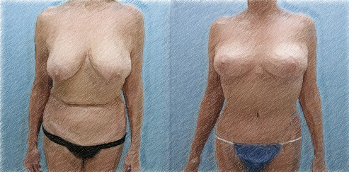 Structural breast lift and high lateral tension abdominoplasty | Dr. John Q. Cook