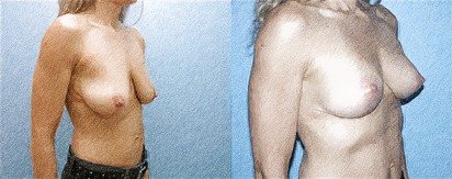 structural breast surgery | John Q. Cook, M.D. | Whole Beauty Institute