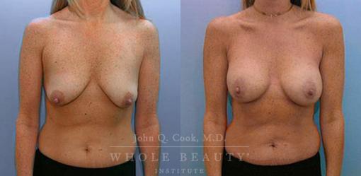 periareolar-mastopexy-with-implants-1a