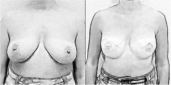 Breast Reconstruction with Fat Transfer