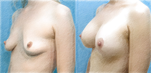 Breast Lift   Dr. John Q. Cook   Chicago and North Shore