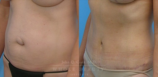 abdominoplasty-case-02-2