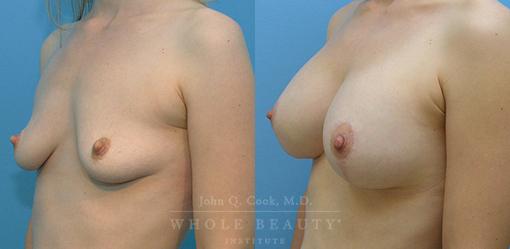 breast-augmentation-case-05