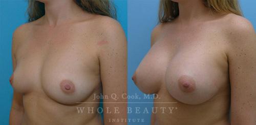 breast-augmentation-case-1-01