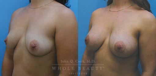 breast-augmentation-case-12