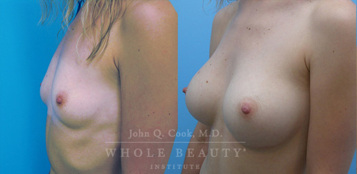 breast-augmentation-case-2-01