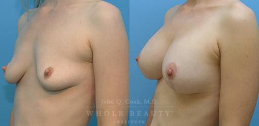 breast-lift-case-2