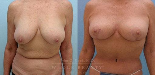 breast-lift-case-3
