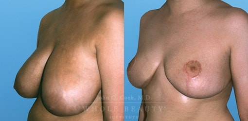 breast-reduction-case-01-fixed