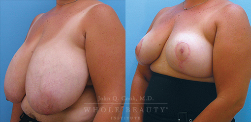 breast-reduction-case-03-side-fixed