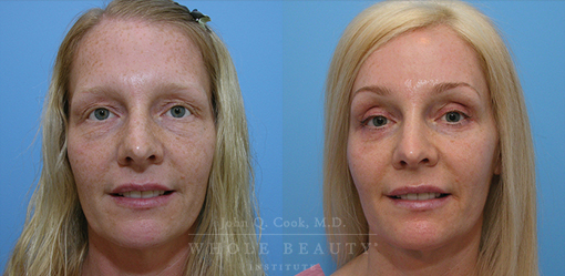 eyelid-surgery-browlift-case-01