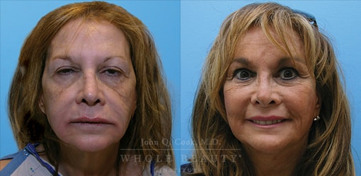 facelift-case-2