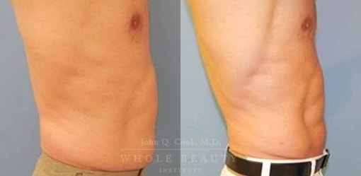 liposuction-case-5-03