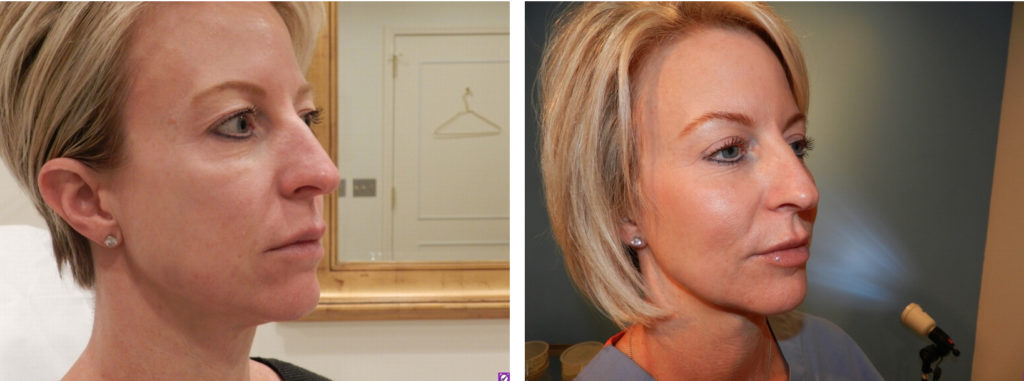 Facial Fat Transfer Treatments
