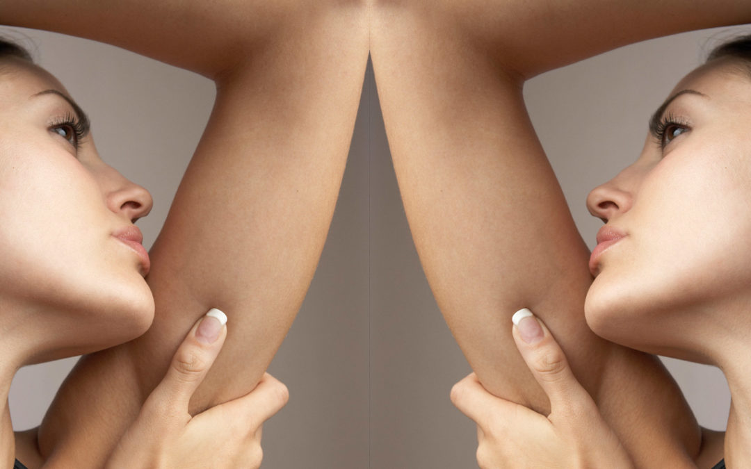Beautiful Arms Are Possible with Laser Liposuction