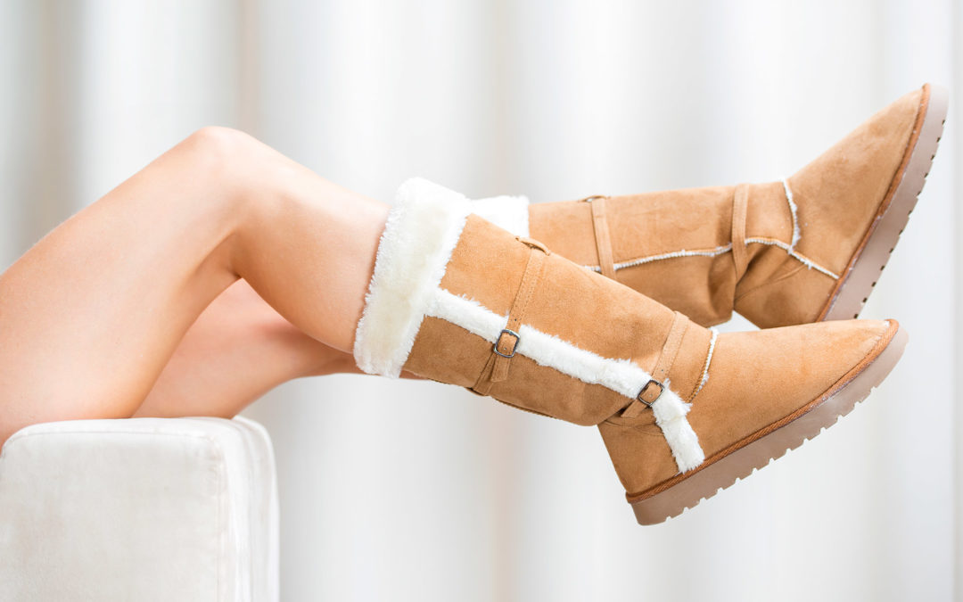Winter Is the Time to Bare Your Legs